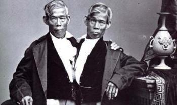 1953. szeptember 17-én választottak szét először sikeresen sziámi ikreket